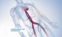 心脏手术三维动画制作