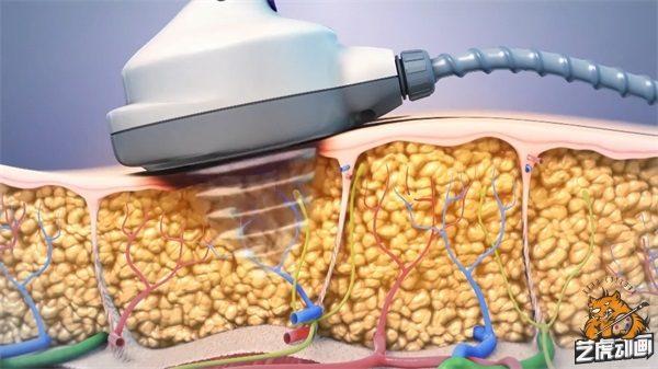 减肥医疗仪器设备三维演示图